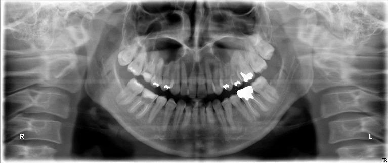 自家歯牙移植 術前