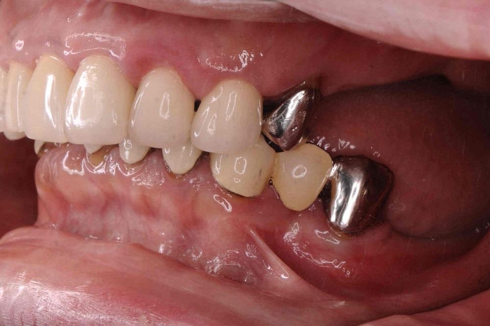 入れ歯症例